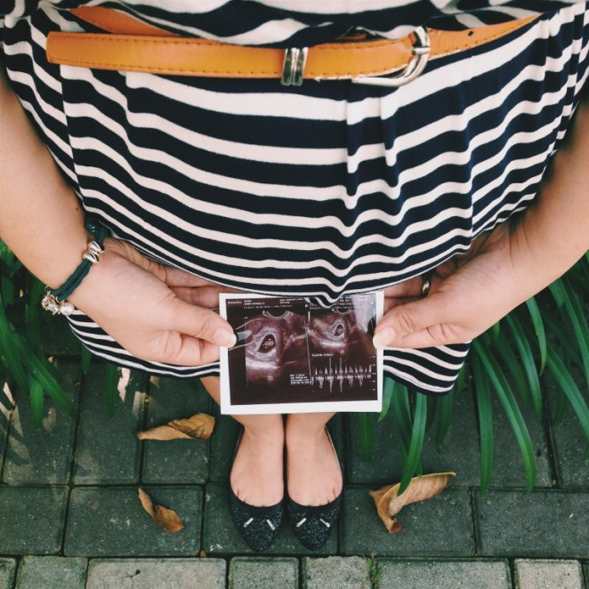 First time hearing the heartbeat! - Mama Berry's Journal